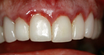 gum-after-veneers